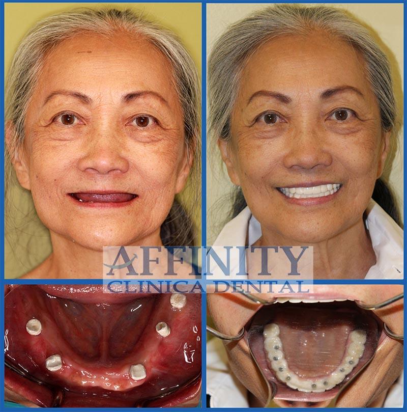 cosmetica-dental-antes-y-despues
