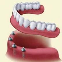 dentaduras-de-implantes