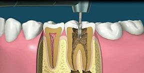 endodoncias-dental