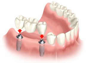 postes-dental